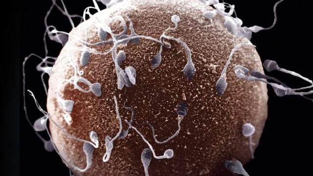 É imoral realizar o exame de espermograma?